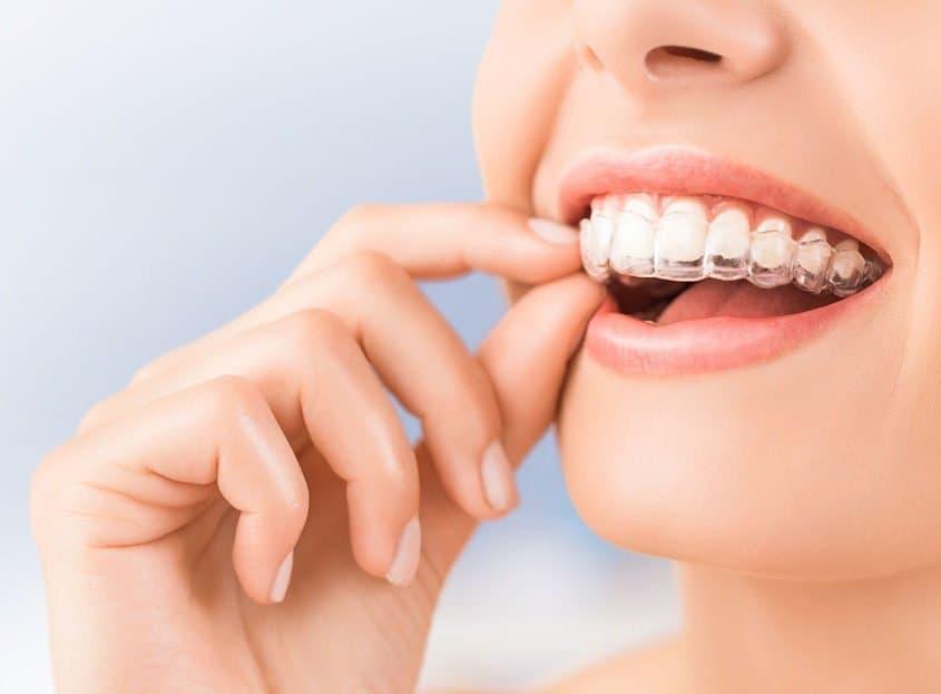 adult-invisalign-braces