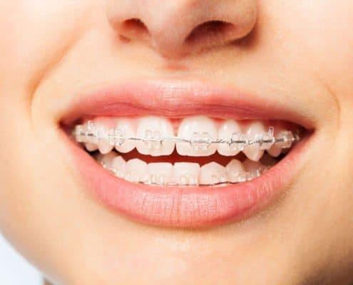 clear-braces