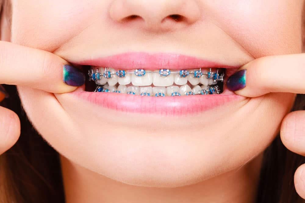 traditional-braces
